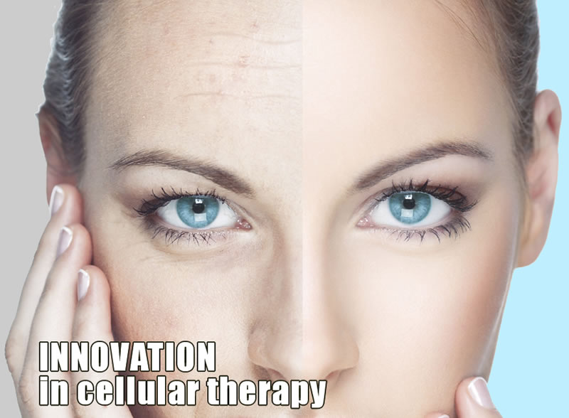 Innovation in Cellular Therapy